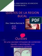QUISTES DE LA REGION BUCAL.ppt