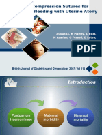 Uterine Compression Sutures for Postpartum Bleeding With Uterine Atony (WITH FLASH)