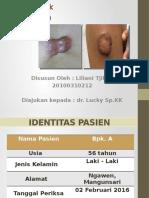 Tutorial Klinik KELOID
