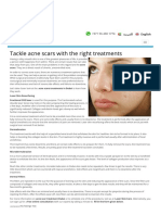 Tackle acne scars with the right treatments