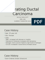 nicole wolcott - infiltrating ductal carcinoma powerpoint