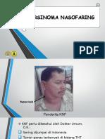 Karsinoma Nasofaring