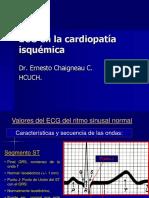 ECG en Cardiopatía Isquémica