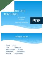 Cst (Chair Site Teaching) Gimul