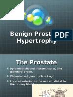 prostatic hypertrophy ppt