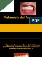 Melanosis Del FumadoooR