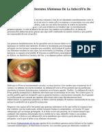 Cuáles Son Los Diferentes Síntomas De La Infección De Los Ojos?