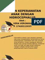 Ppt Hidrocephalus Fix
