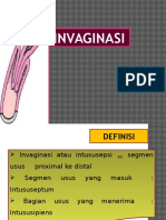 invaginasi