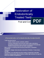 Endodontically_Treated Post&Core System IMPT