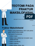 Osteotomi Pada Fraktur Maksilofasial