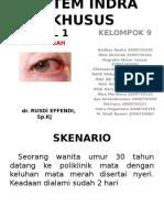 MODUL 1 - Mata Merah