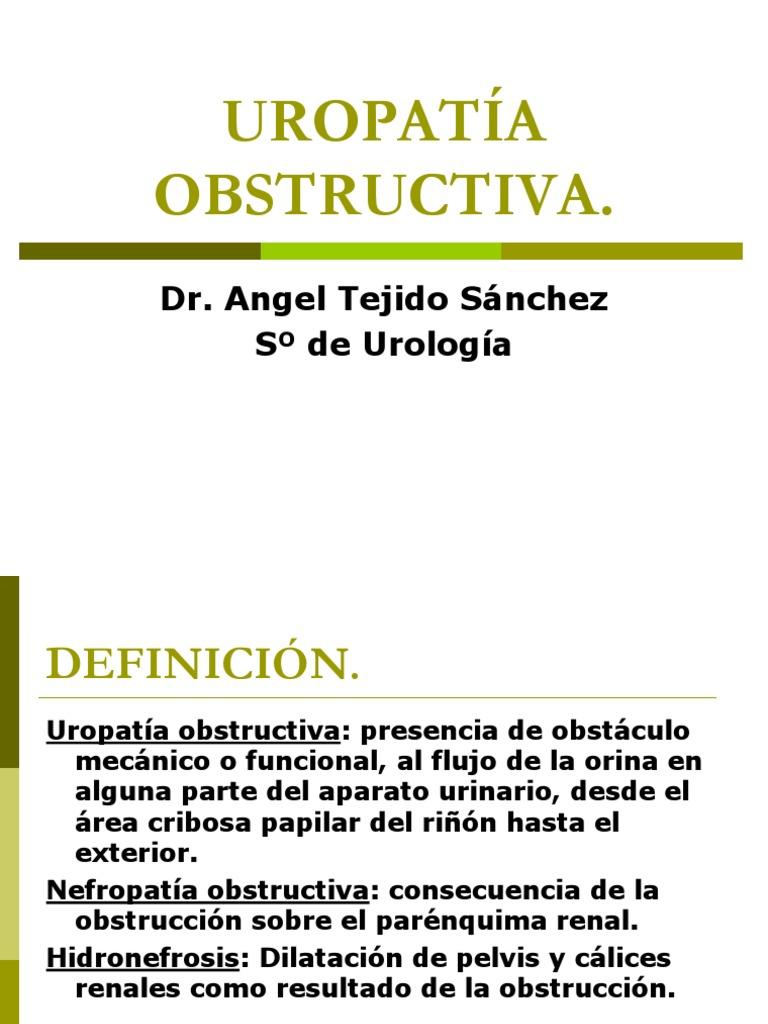 definición de nefropatía obstructiva