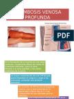 trombosisvenosaprofunda-140209204042-phpapp01