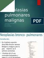 Neoplasias malignas-generales