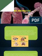 Asma y Bronquiectasia