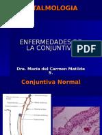 4. Conjuntivitis