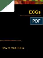 Pediatric Ecgs