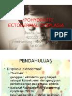 HYPOHYDROTIC ECTODERMAL DYSPLASIA