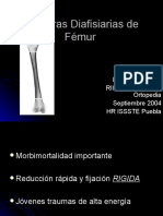 Fx Femur
