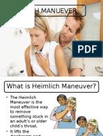 Heimlich Manuever