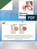 Osteoporosis, Como Prevenirla ?