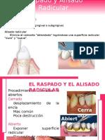 Raspado y Alisado Radicular