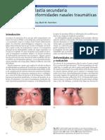 26 Rinoplastia Secundaria Por Deformidades Nasales Traum Ticas 2005 Traumatismos Maxilofaciales y Reconstrucci n Facial Est Tica