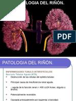 PATOLOGIA DEL RIÑON.ppt