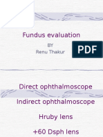 Fundus Examination is good for ocular health,and doing routine check up