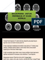 Wina CT Scan Reading