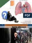 emboli paru
