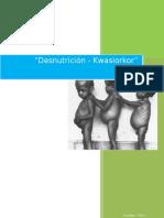 Desnutricon Cronica