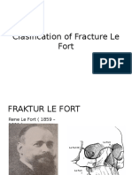 Clasification of Fracture Le Fort