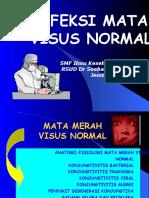 INFEKSI Mata Visus-Normal