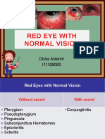 Red Eye With Normal Vision