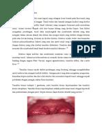 Patofisiologi Tonsilitis 2.docx