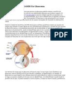 Tratamientos Con LASER En Glaucoma
