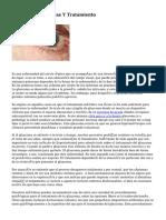Glaucoma, Síntomas Y Tratamiento