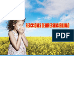 hipersensibilidad-28102015