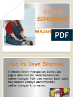 Down Sindrome Ppt
