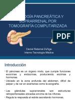 Pancreas Ssrr Tc