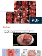 THT kanker nasofaring