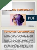 Proceso de Atencion de Enfermeria a Ptes Con Tumores Cerebra Les