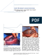 placenta accreta caesarean hystrectomy.docx
