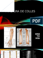 fractura de radio extra articular, enfoque fisioterapeutico