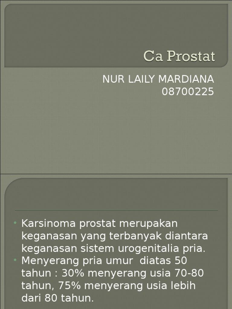 mri prostatakarzinoma