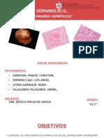 Neoplasias Benignas y Malignas - Higado