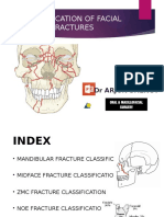 facial fractures classification
