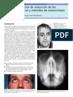 7 Principios de Reducci n de Las Fracturas y m Todos de Osteos Ntesis 2005 Traumatismos Maxilofaciales y Reconstrucci n Facial Est Tica